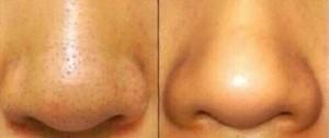 鼻の黒ずみビフォーアフター