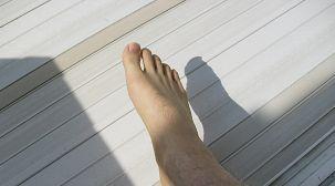 爪水虫と日光消毒